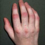 関節症性乾癬の症状皮膚症状(皮疹ひしん)爪の変化末梢関節炎まっしょうかんせつえん脊椎炎せきついえん指炎しえん付着部炎ふちゃくぶえん